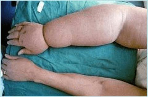 Профилактика лимфатического отека